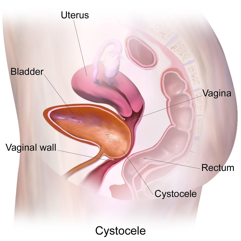 Cystocele