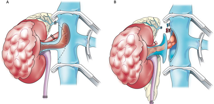 RADICAL NEPHRECTOMY1