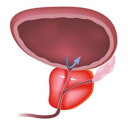 prostatis adenoma