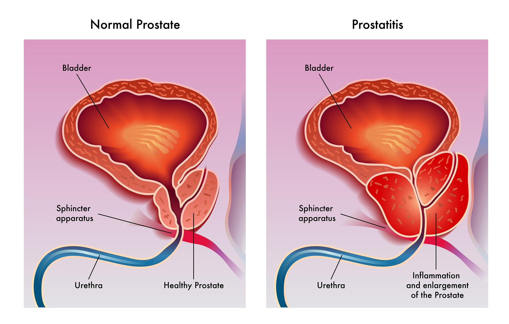 Two Prostate Images Med Pic 2