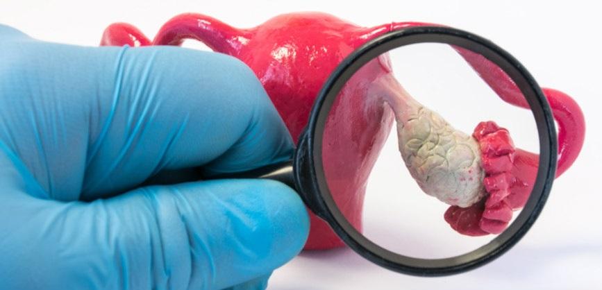 pharmamar stock ovarian cancer