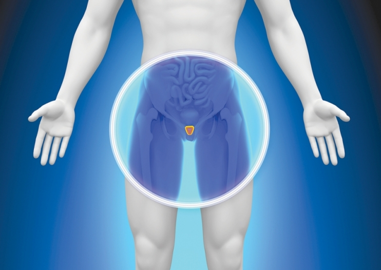 prostata 1